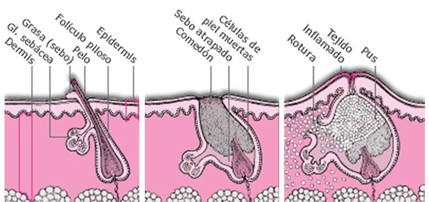 tratamiento antiacne Sauerstoff cuida tu piel
